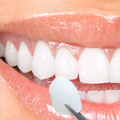 Veneers, procedures